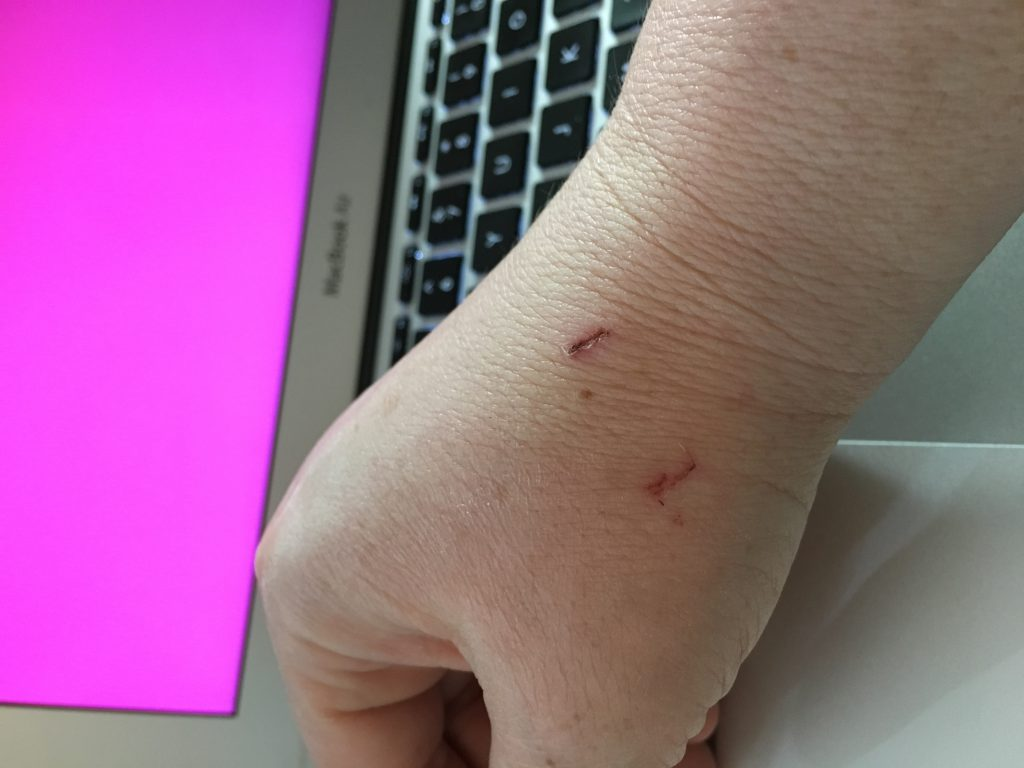 photo of my hand with healing rabbit bite marks